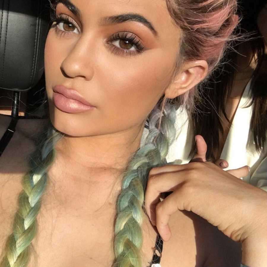 kylie jenner plastic surgery timeline - before and after pictures
