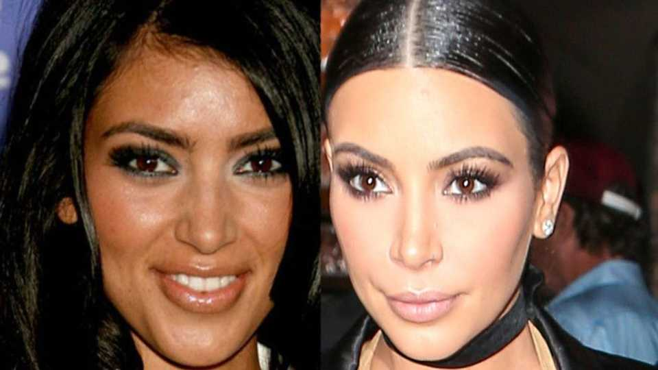 Kim Kardashians Plastic Surgery Timeline Before And After Surgery