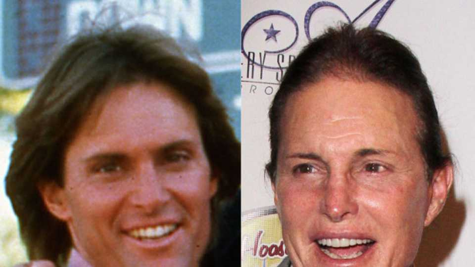Plastic Surgery Timeline The Changing Face Of Bruce